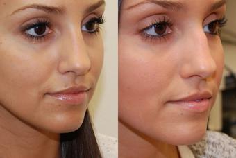Как с помощью макияжа скрыть носик с горбинкой